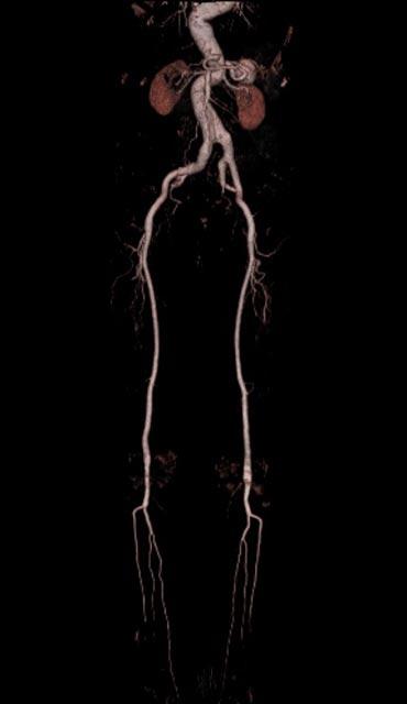 Computertomographie - Radiologie am Diakonissenkrankenhaus