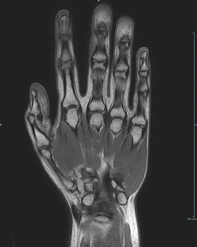 Magnetresonanztomographie - Radiologie am Diakonissenkrankenhaus